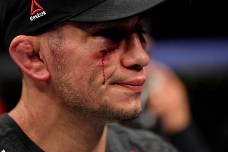 Tony Ferguson correu para o hospital depois de levar uma surra selvagem de Justin Gaethje no UFC 249